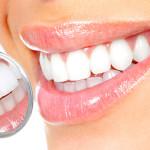 Sbiancamento denti: come avere un sorriso più bianco
