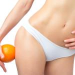 Cause e rimedi della cellulite