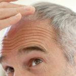 Italcenter ti aiuta da oltre 30 anni a risolvere problemi di caduta capelli uomo e donna