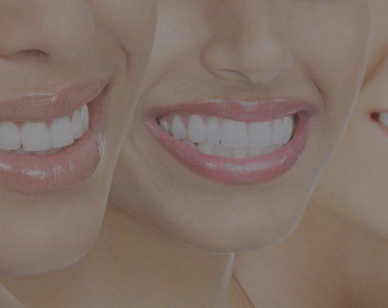 ortodonzia invisibile Smiletech