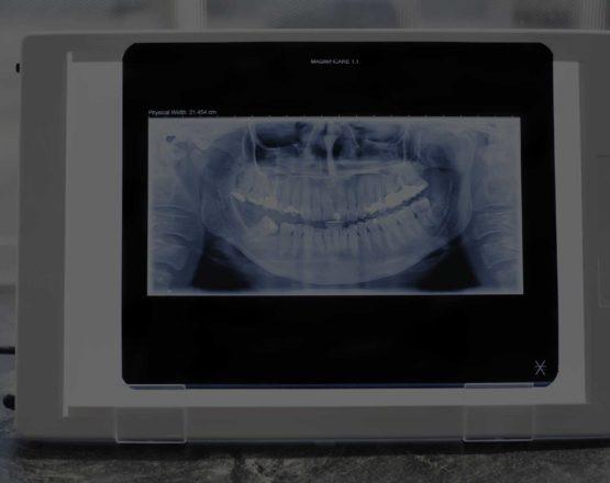 refertazione odontoiatrica online